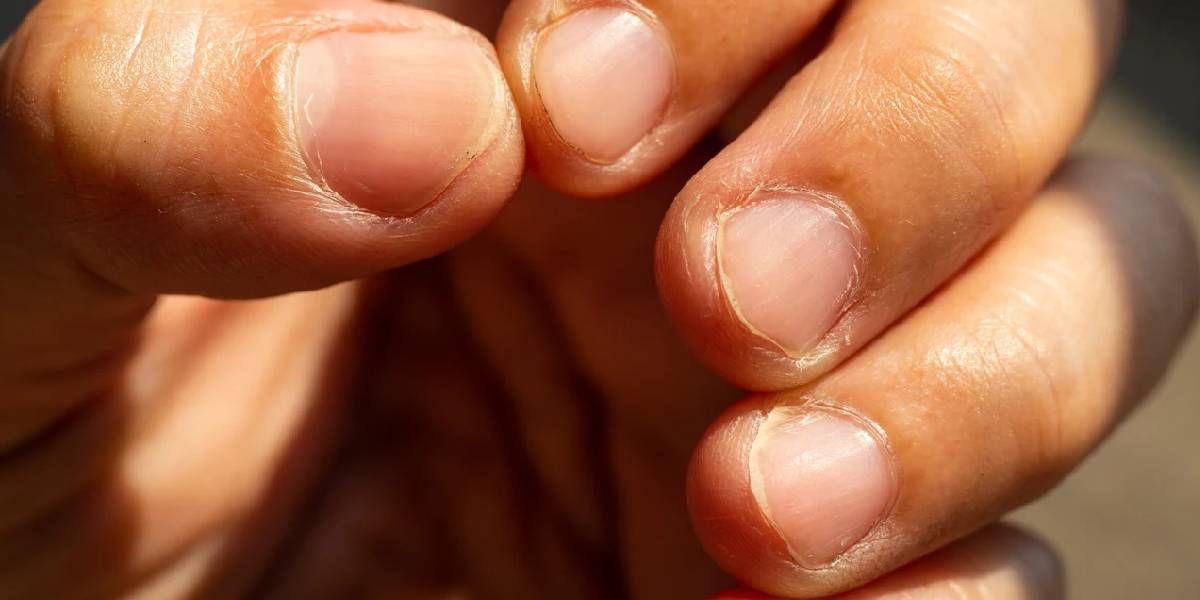 Onicofagia: cuáles son los peligros de morderse las uñas